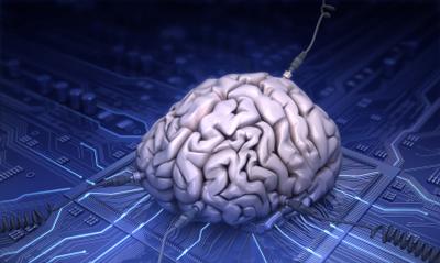 img-neuro2